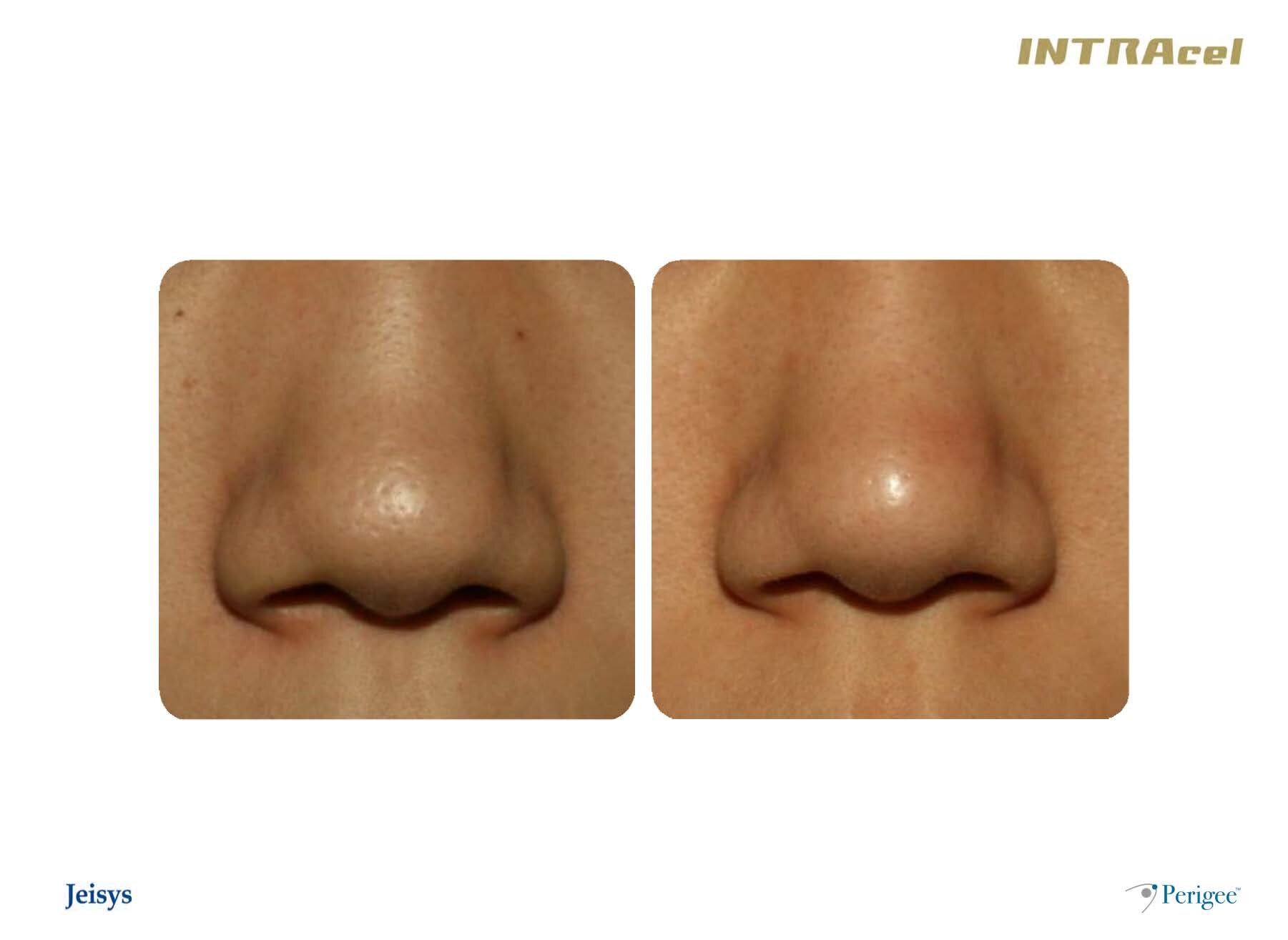 INTRAcel - RF microneedle (FRM™) system | Perigee Medical