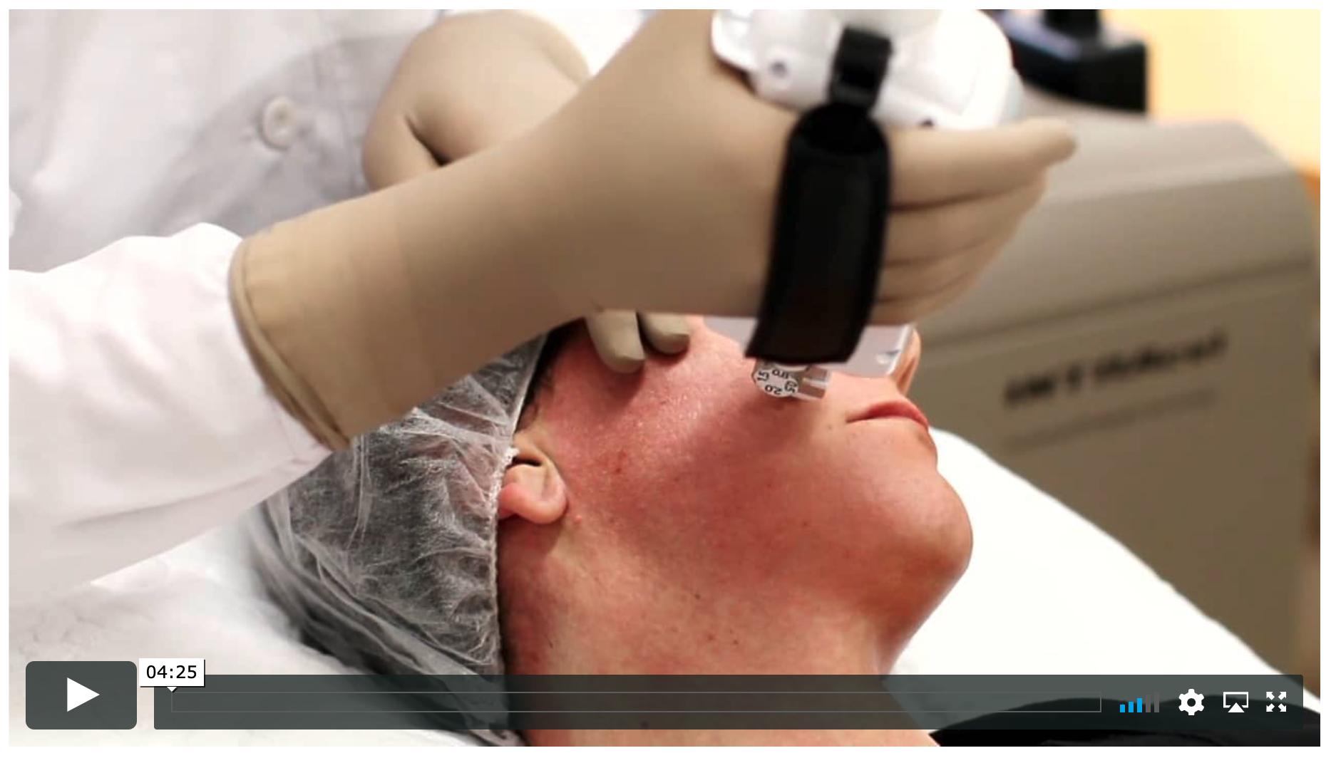 intracel physics video