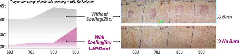 contact cooling - lipocel fat removal device